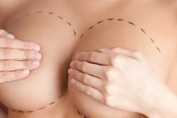 Aumento mamario en Madrid
