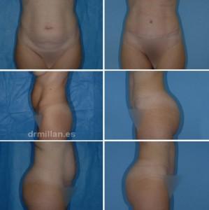 abdominoplastia_05