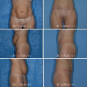 abdominoplastia_06
