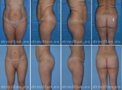 antes y despues de la liposuccion