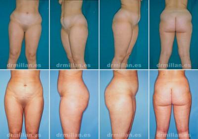 antes y despues de la liposuccion