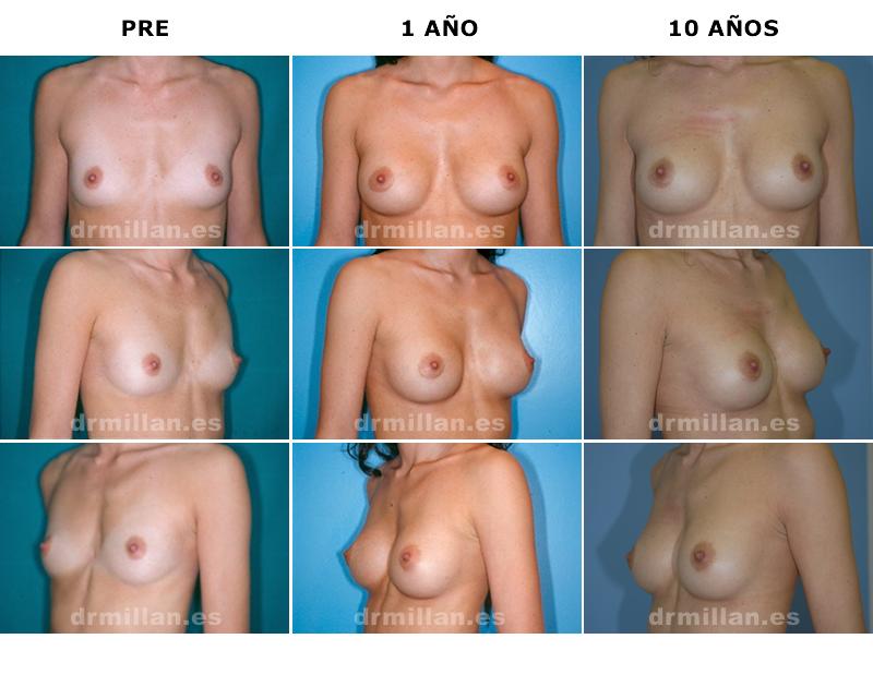 aumento_mamario1
