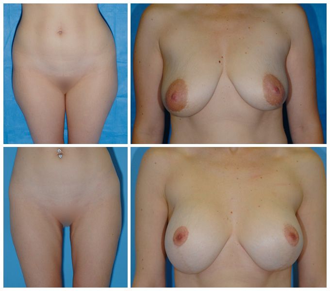 Liposuccion y mastopexia con aumento