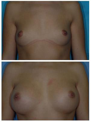 aumento de mamas testimonio