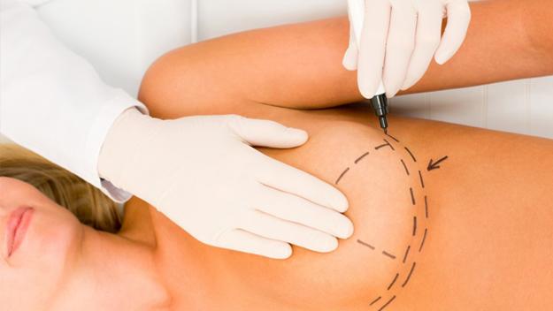 cirugía estética aumento de pecho