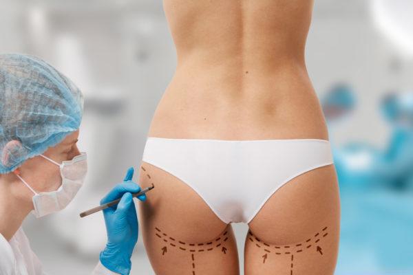 Ahora es el mejor momento para realizarte una cirugía estética