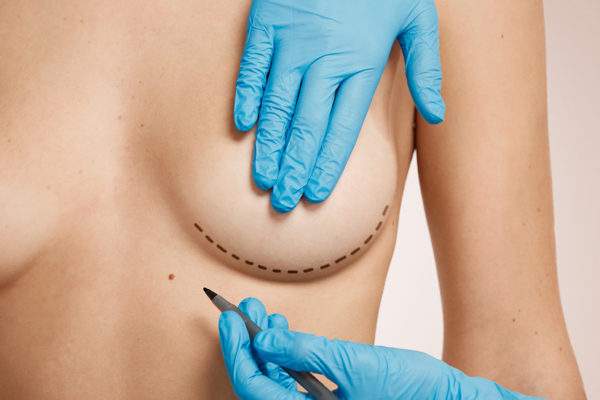 Reconstrucción mamaria, recupera tu vida
