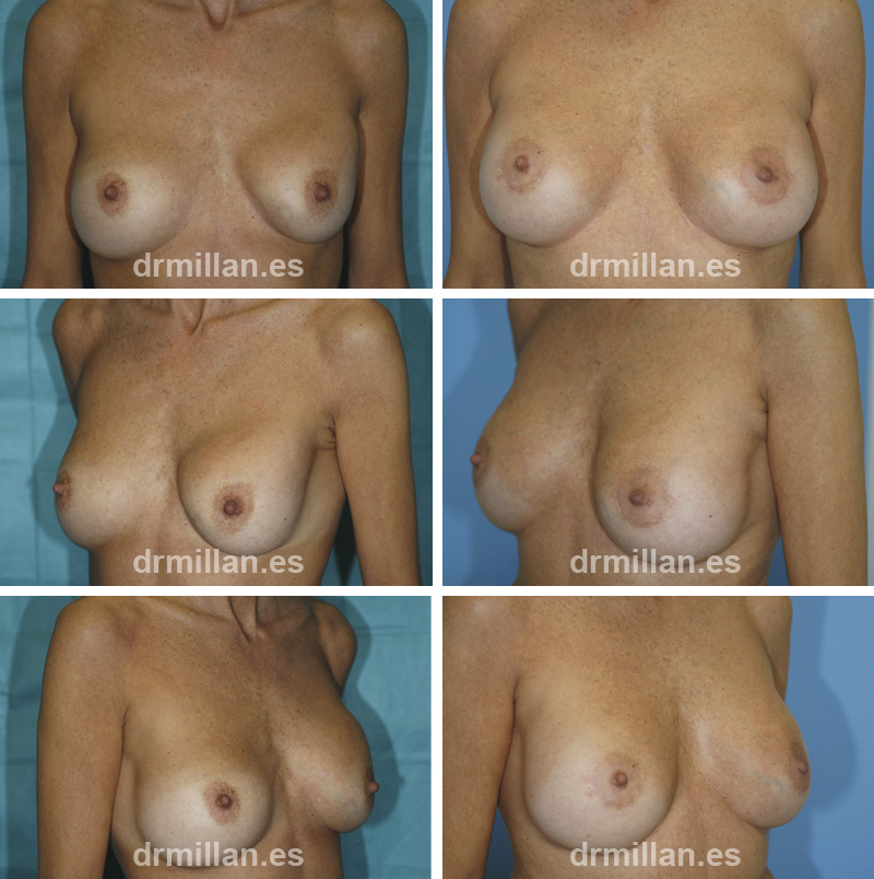 cambio de protesis mamarias